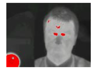 HBTMS Thermal Image 2